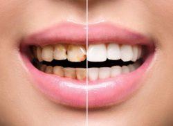 歯に色がつきやすい!