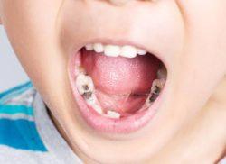 歯に良い食べ物